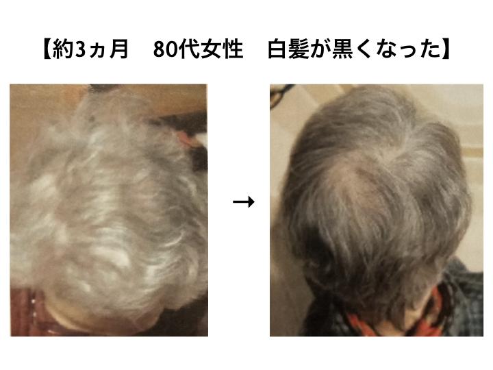 DDパーフェクトG11ウォーターの効果検証|【約3ヵ月 80代女性 白髪が黒くなった】