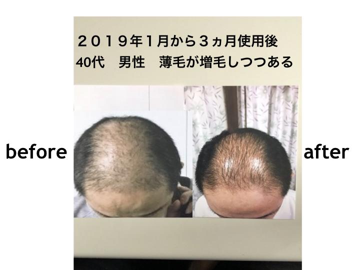 育毛増毛効果 2019年1月から3ヵ月使用後 40代 男性 薄毛が増毛しつつある