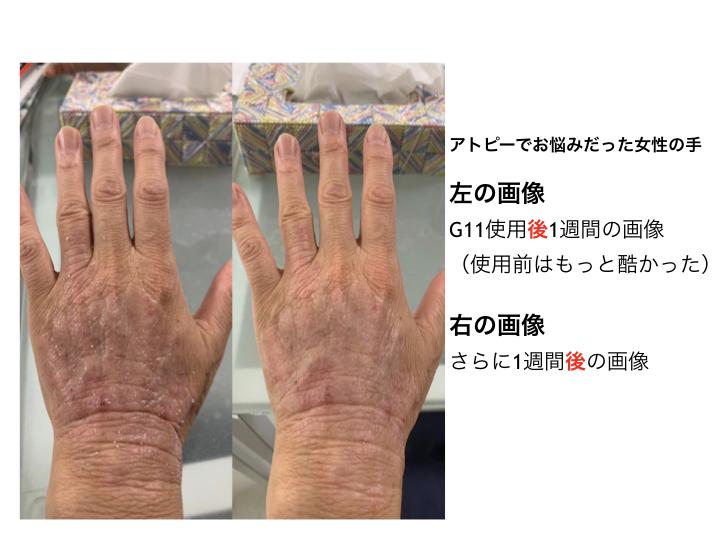 アトピーの改善 アトピーでお悩みだった女性の手  左の画像 G11使用後1週間の画像 (使用前はもっと酷かった) 右の画像 さらに1週間後の画像